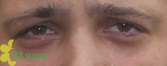 темные мешки под глазами у мужчин