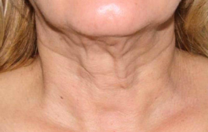 поперечные морщины на шее