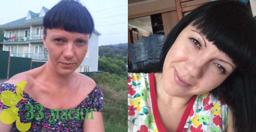 Алмазный пилинг в салоне - фотографии до и после процедуры