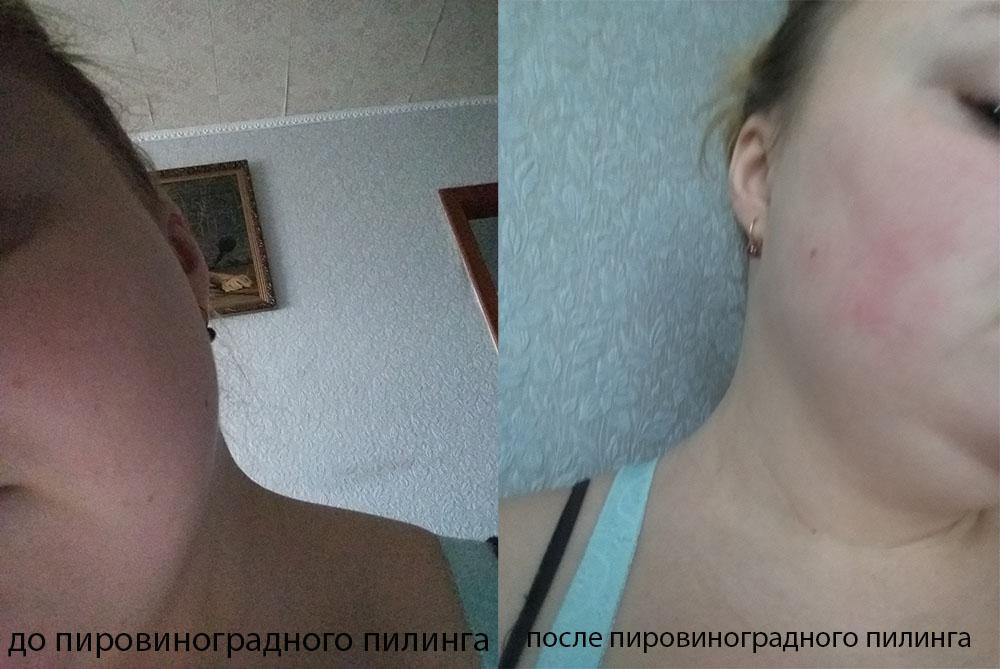 пировиноградный пилинг: реальный отзыв и фото до и после