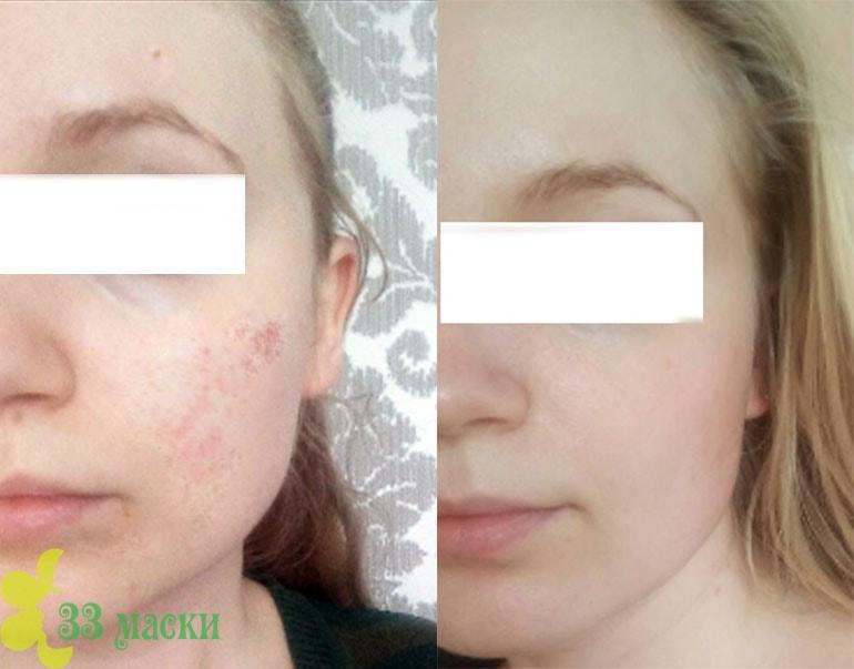 энзимный пилинг кожи лица: реальный отзыв