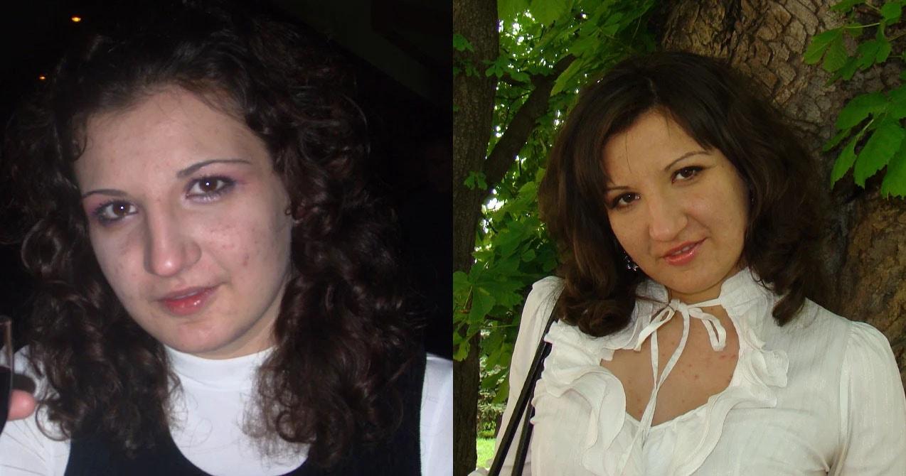 ТСА пилинг - реальные отзывы с фото до и после процедуры