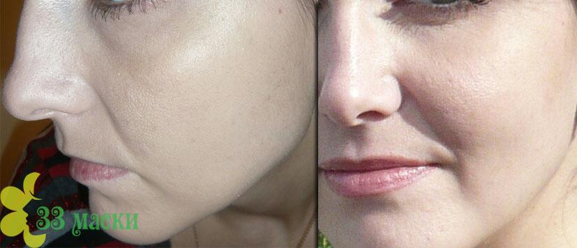 гликолевый пилинг для лица: реальные отзывы
