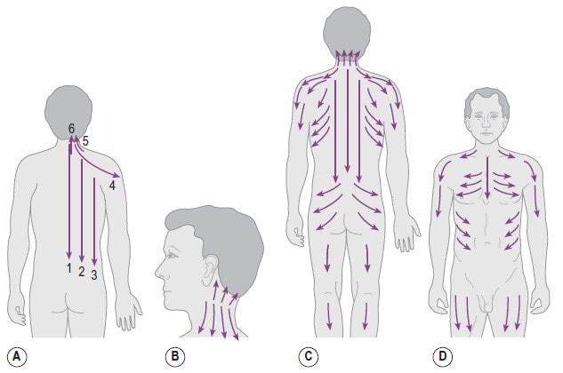 Схемы массажных движений Гуаша на теле