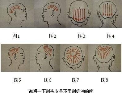 Схема массажных движений Гуаша на волосистой части головы
