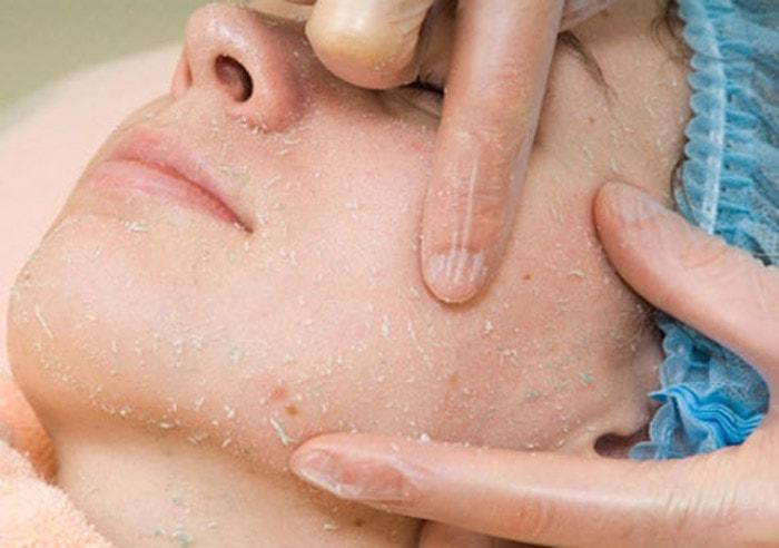 проведение процедуры пилинга-скатки врачом-косметологом