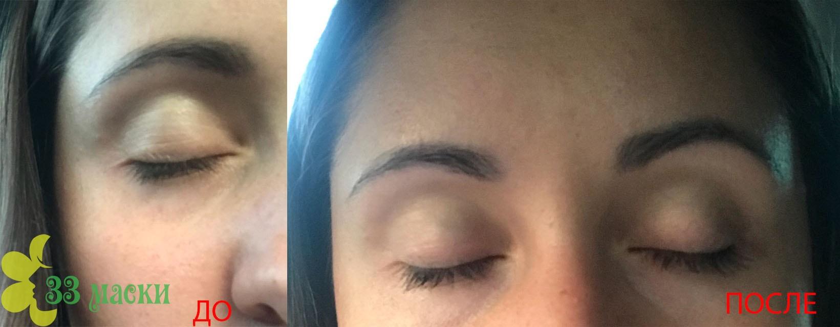 термаж лица - отзывы с фото до и после процедуры